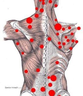 NYC Chiropractor